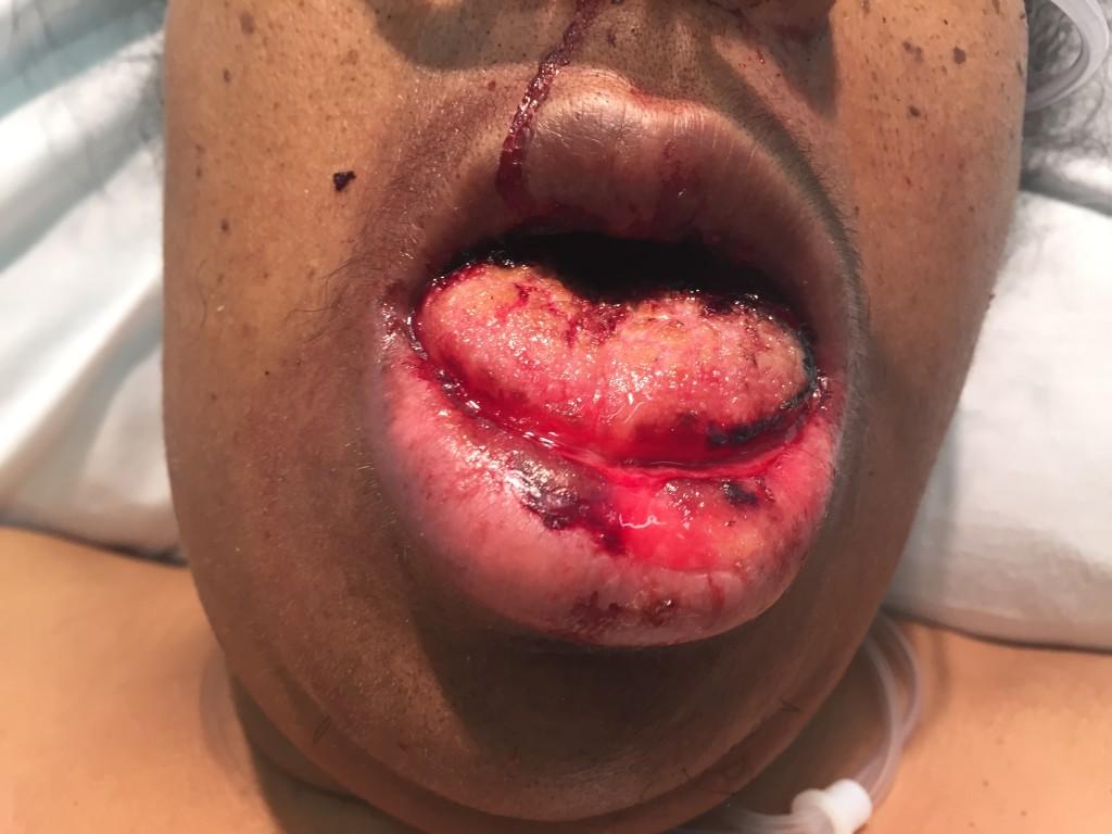 TTP-Swollen Tongue