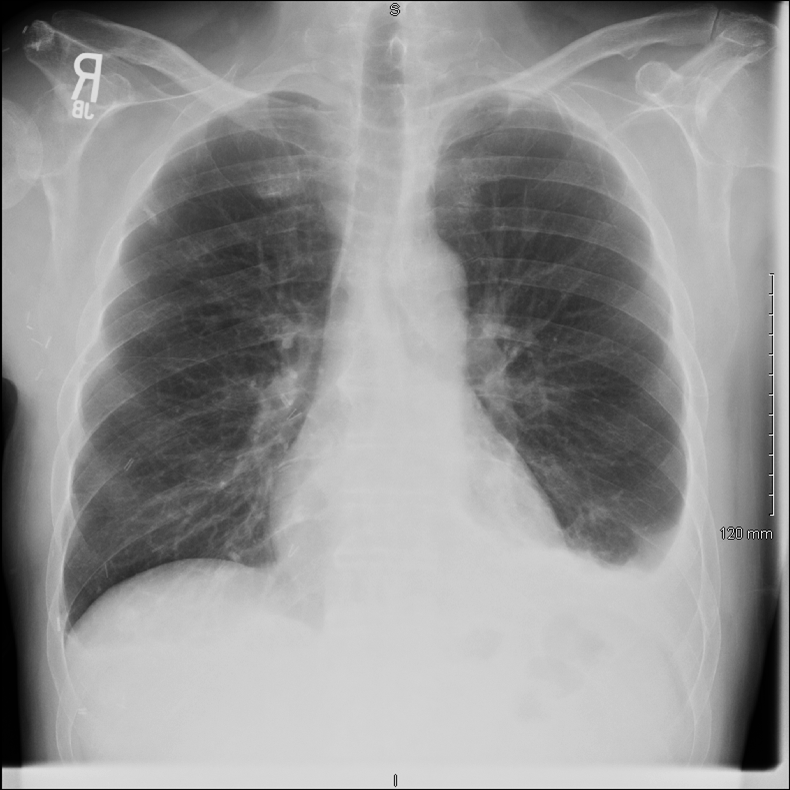 eosinophilic pleural effusion: what does it mean, & what do i do, Skeleton